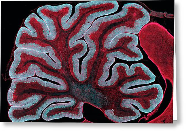 Cerebellum From A Brain Greeting Card by Thomas Deerinck, Ncmir