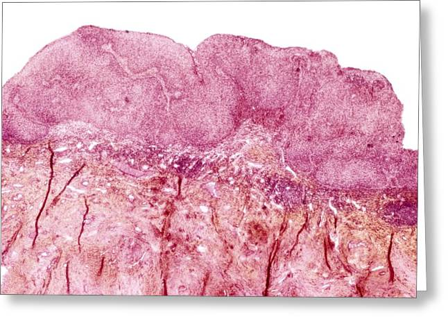 Sexually Transmitted Disease Greeting Cards - Cervical wart, light micrograph Greeting Card by Science Photo Library