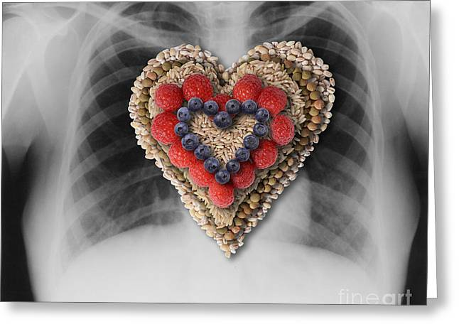 Heart Healthy Photographs Greeting Cards - Chest X-ray & Heart-healthy Foods Greeting Card by Gwen Shockey