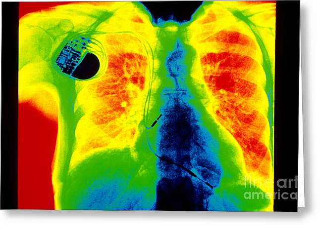 Chest Greeting Cards - Chest X-ray Showing Pacemaker Greeting Card by Scott Camazine