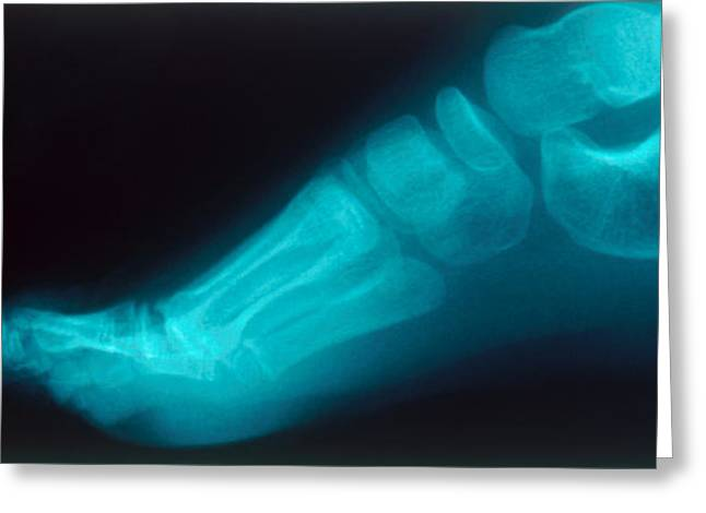 Childs Foot, X-ray Greeting Card by Susan Leavines