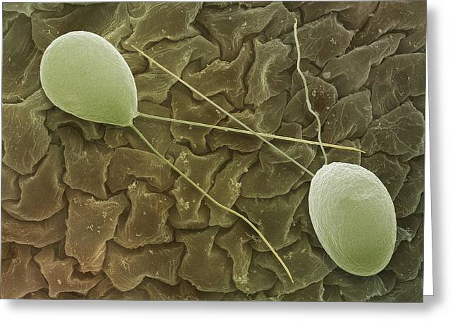 Unicellular Greeting Cards - Chlamydomonas Sp. Algae, Sem Greeting Card by Power And Syred
