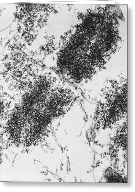 Cytoskeleton Greeting Cards - Chromosome With Microtubules, Tem Greeting Card by David M. Phillips