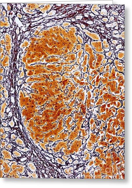 Stellate Photographs Greeting Cards - Cirrhosis Of The Liver, Light Micrograph Greeting Card by Microscape