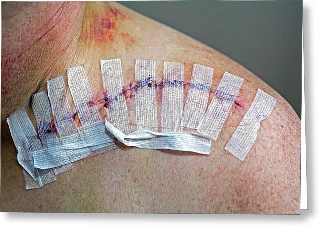 Collar Bone Surgery Greeting Card by Jim West