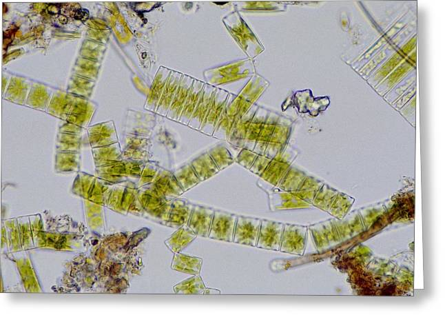 Colonial freshwater diatoms Greeting Card by Science Photo Library