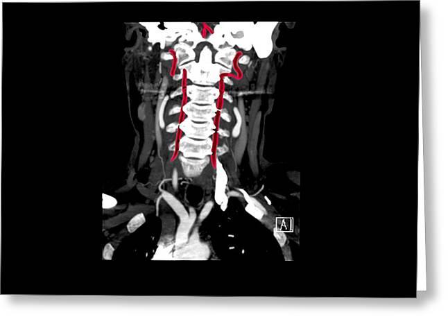 Ct Angiogram Greeting Cards - Color Enhanced Cta Of Vertebral Arteries Greeting Card by Living Art Enterprises, LLC