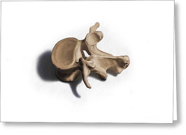 Vertebra Greeting Cards - Color Illustration Of A Human Vertebra Greeting Card by Nicholas Mayeux