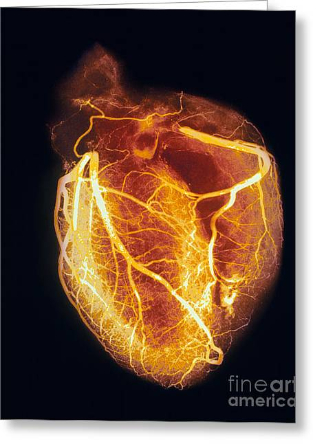 Angiogram Greeting Cards - Colored arteriogram of arteries of healthy heart Greeting Card by Spl