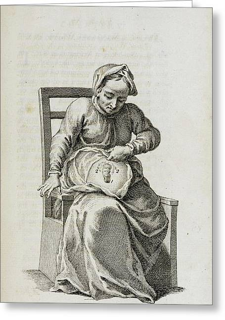 Colostomy Greeting Card by British Library