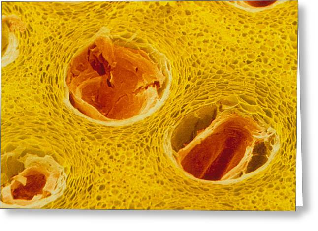 Trichome Greeting Cards - Coloured Sem Of Trichomes In Lemon Peel. Greeting Card by Power And Syred