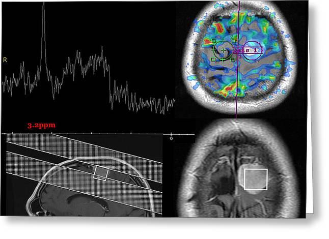 Diagnostic Imaging Greeting Cards - Composite Image Of Meningioma Greeting Card by Living Art Enterprises