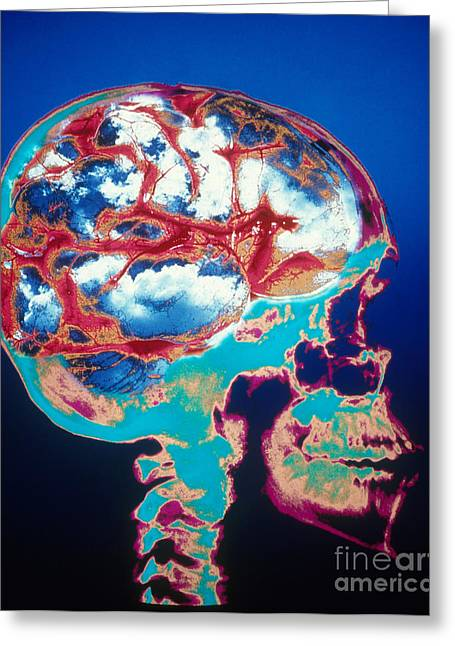 Unrealistic Greeting Cards - Conceptual Skull With Blue Sky Brain Greeting Card by Bill Longcore