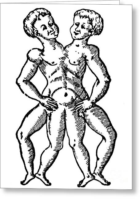 Conjoined Twins, 16th Century Greeting Card by Science Source