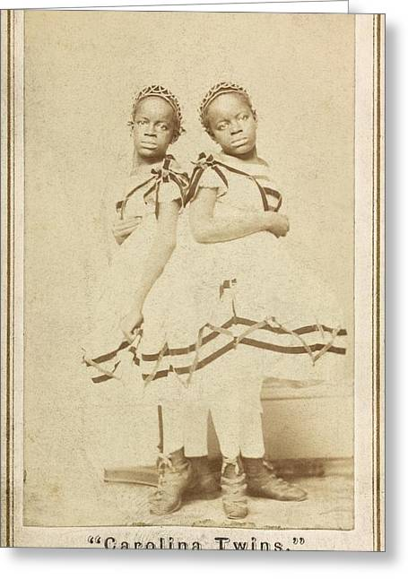 Conjoined Twins Greeting Card by Library Of Congress