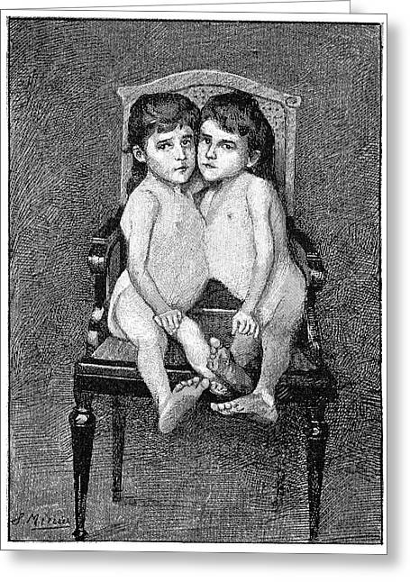 Conjoined Twins Greeting Card by Science Photo Library