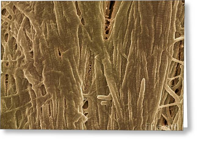 Scanning Electron Microscope Greeting Cards - Cortical Bone, Sem Greeting Card by Science Photo Library