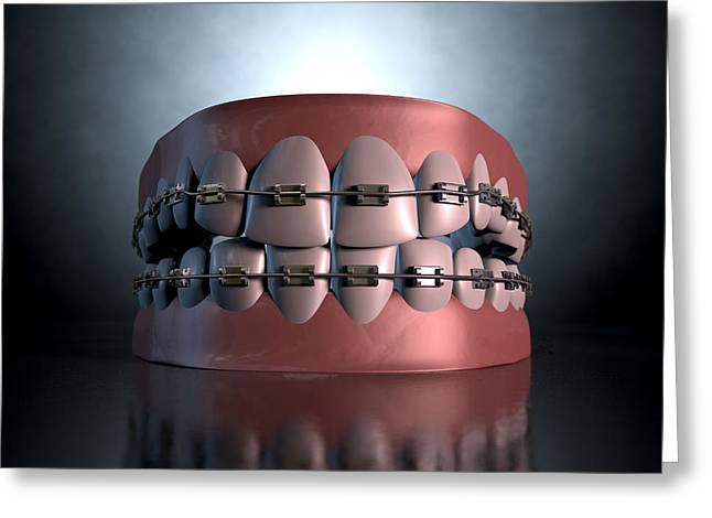 Dentistry Greeting Cards - Creepy Teeth With Braces Greeting Card by Allan Swart
