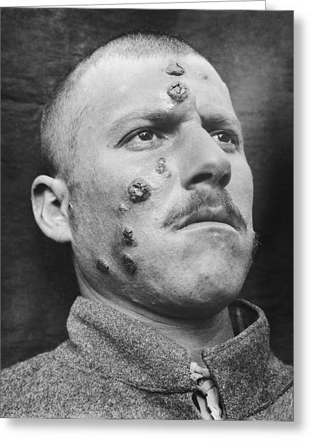 Dermatology Department Greeting Cards - Cutaneous leishmaniasis, 1917 Greeting Card by Science Photo Library