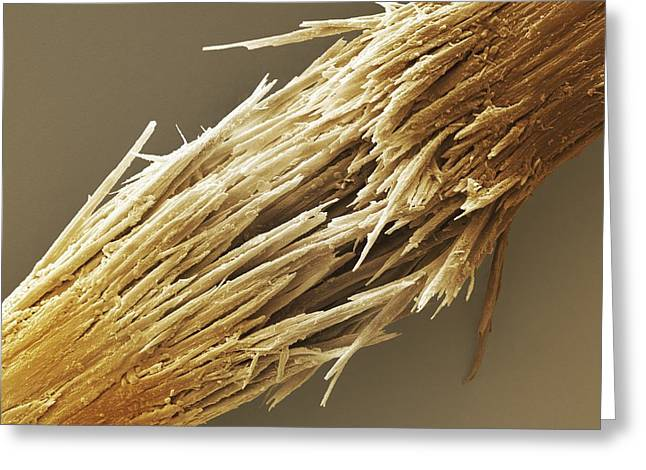 Hair Dye Greeting Cards - Damaged human hair shaft SEM Greeting Card by Science Photo Library