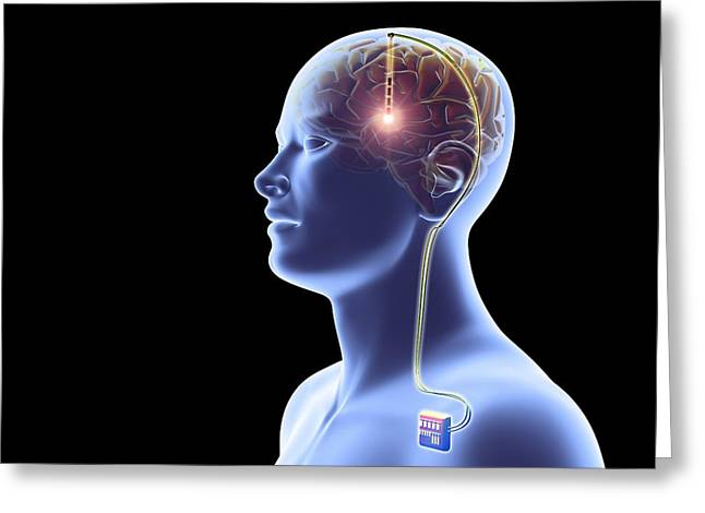 Brain Surgery Greeting Cards - Deep brain stimulation, artwork Greeting Card by Science Photo Library