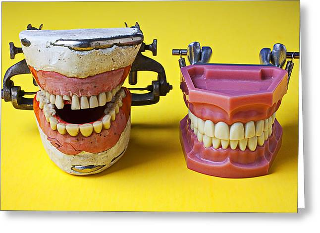 Dentistry Greeting Cards - Dental models Greeting Card by Garry Gay