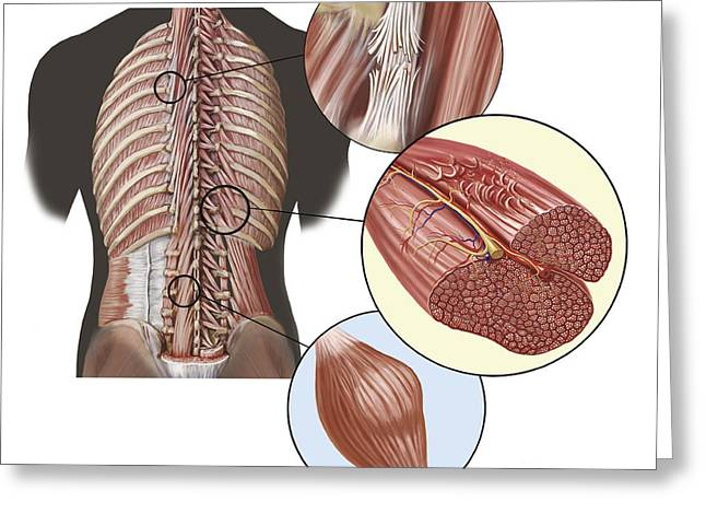 Actin Filament Greeting Cards - Detail Of Deep Back Muscles Greeting Card by TriFocal Communications