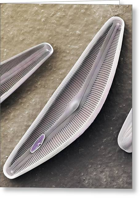 Frustule Greeting Cards - Diatom frustules (SEM) Greeting Card by Science Photo Library