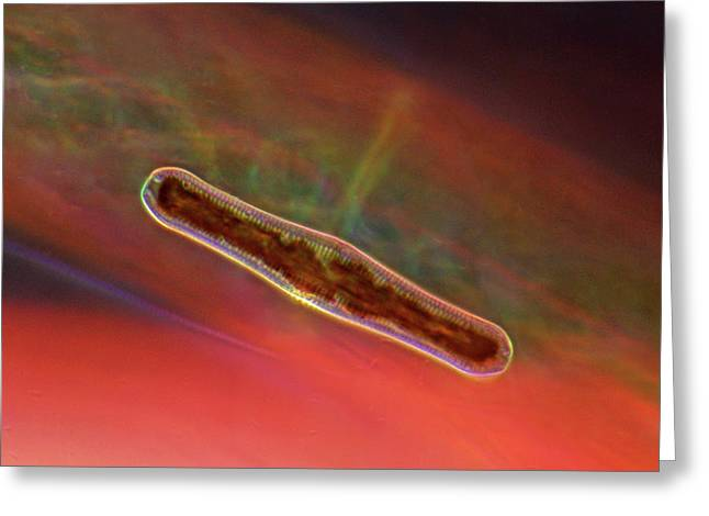 Diatom Greeting Card by Marek Mis