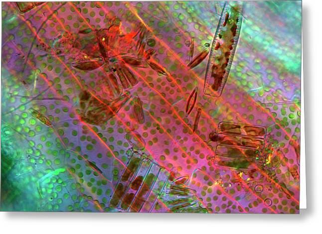 Diatoms Greeting Card by Marek Mis
