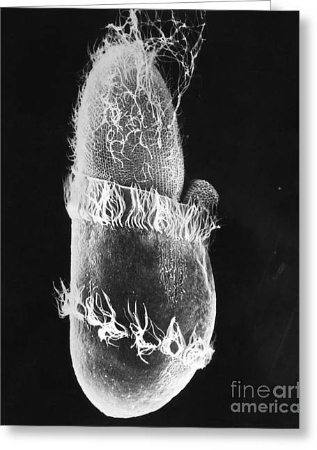 Unicellular Greeting Cards - Didinium Ingesting Paramecium Sem Greeting Card by Greg Antipa