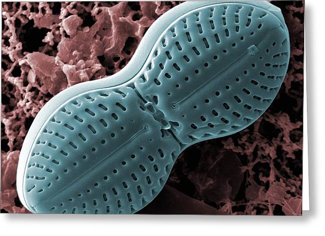 Unicellular Greeting Cards - Diploneis diatom, SEM Greeting Card by Science Photo Library