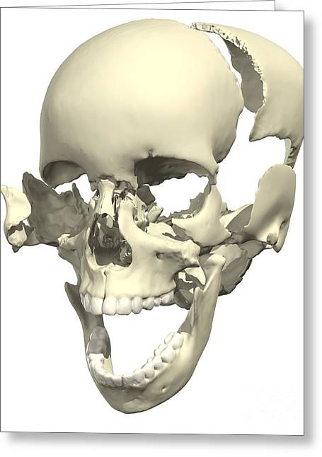Ethmoid Bone Greeting Cards - Disarticulated Skull Greeting Card by Medical Images, Universal Images Group