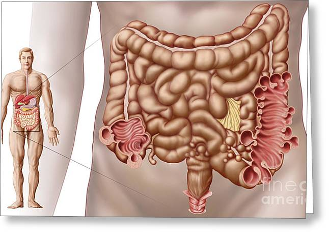 Conditions Digital Greeting Cards - Diverticulitis In The Descending Colon Greeting Card by Stocktrek Images