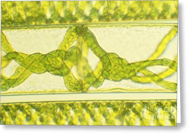 Microorganisms Greeting Cards - Dividing Cells Of Spirogyra Greeting Card by James M. Bell