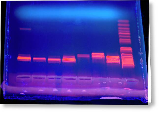 Dna Electrophoresis Under Uv Light Greeting Card by Louise Murray