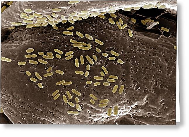 E. Coli On A Membrane Greeting Card by Clouds Hill Imaging Ltd