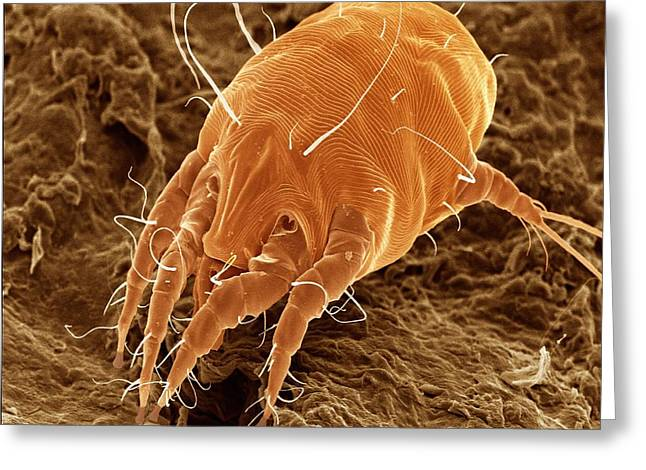 Ear Mite (otodectes Cynotis). Greeting Card by Power And Syred