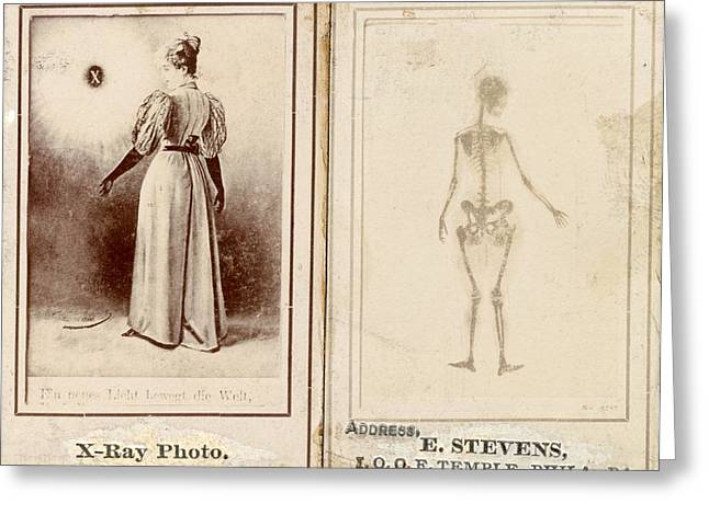 E-montage Greeting Cards - Early X-ray demonstration, 1896 Greeting Card by Science Photo Library
