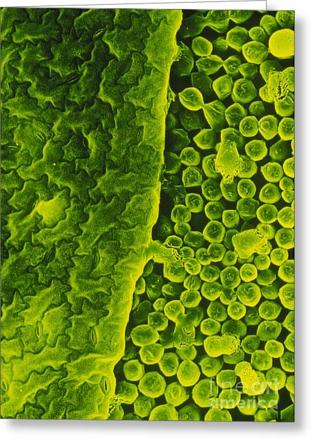 Chloroplast Greeting Cards - Electron Micrograph Of Upper Surface Greeting Card by Dr. Jeremy Burgess