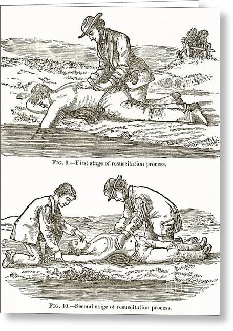 Back To Life Greeting Cards - Emergency Resuscitation, 19th Century Greeting Card by Middle Temple Library