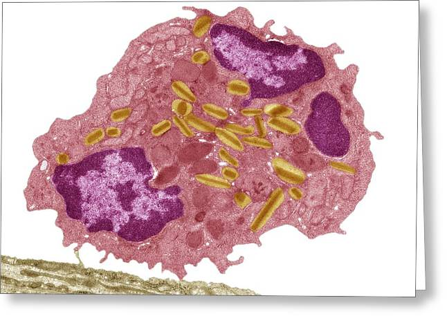 Allergic Greeting Cards - Eosinophil white blood cell, TEM Greeting Card by Science Photo Library