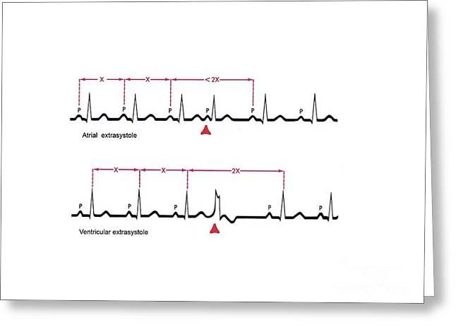 Ventricular System Greeting Cards - Extrasystole Heartbeats, Ecg Artwork Greeting Card by Bo Veisland