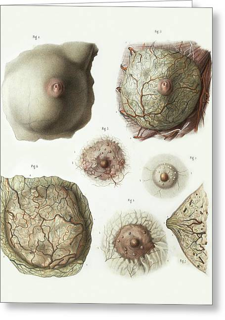 Female Breast Anatomy Greeting Card by Science Photo Library