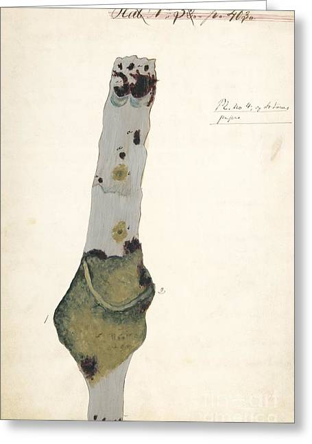 War Dead Greeting Cards - Femoral Vein In A Case Of Pyaemia, 1860s Greeting Card by Manuscripts And Archives Division