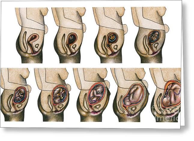 Gestating Greeting Cards - Fetal Development Greeting Card by Gwen Shockey