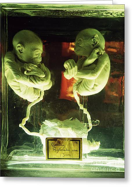 Umbilical Cord Greeting Cards - Fetal Gibon Twins Greeting Card by Dirk Wiersma