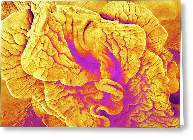 Fimbriae Of A Fallopian Tube Greeting Card by Susumu Nishinaga