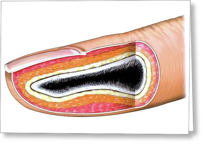 Fingernail Greeting Card by Asklepios Medical Atlas