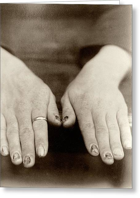 Fingernail Loss Due To Syphilis Greeting Card by National Library Of Medicine